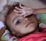 400 000 enfants yéménites risquent de mourir de malnutrition en 2021